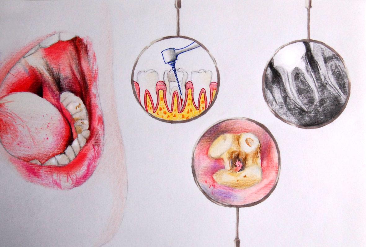Les dents du dentiste par Fanny M.